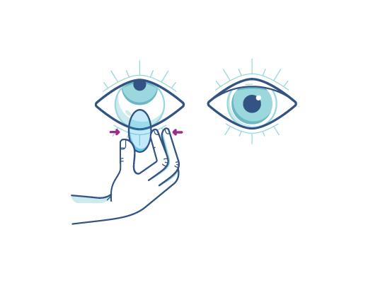 Klem forsigtigt på linsen for at fjerne kontaktlinsen