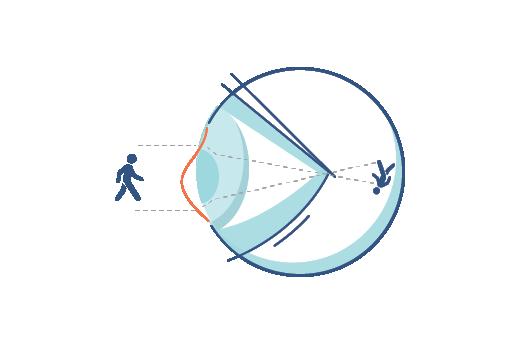 Illustration af et øje med en bygningsfejl
