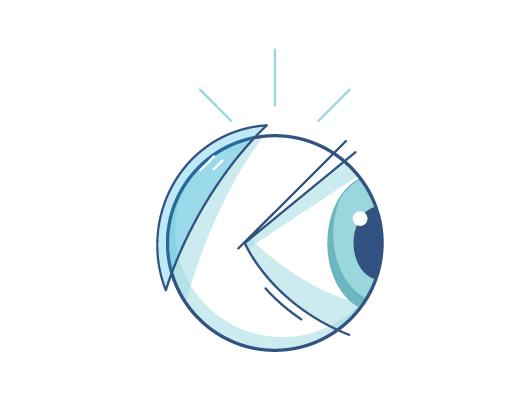 Illustration af en kontaktlinse bag øjet