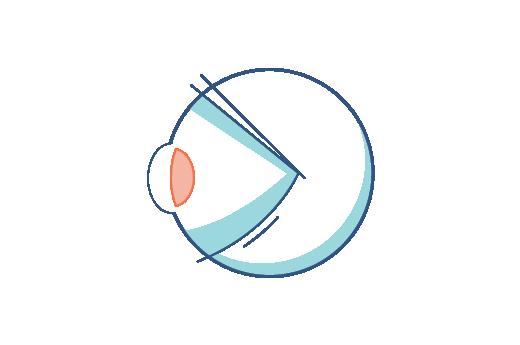 Illustration af et øje med alderssyn