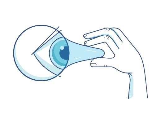 En der tager en kontaktlinse ud af øjet