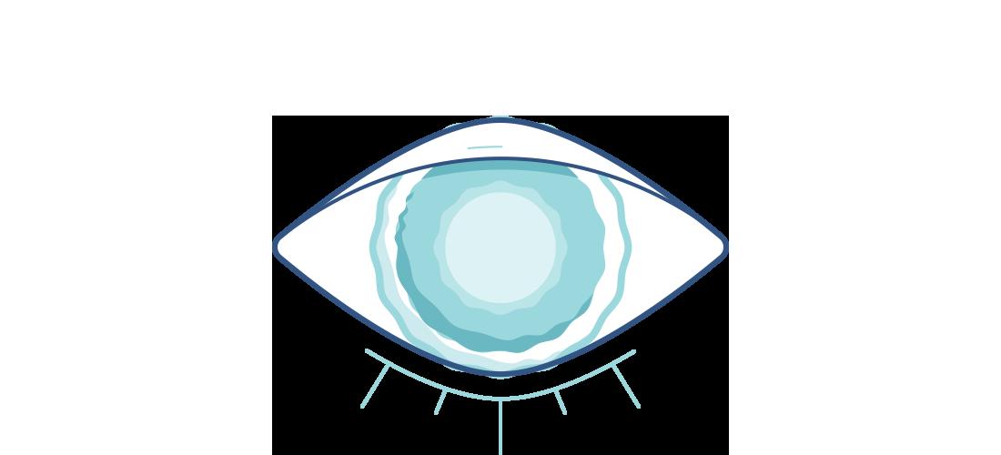 Illustration af et sløret øje