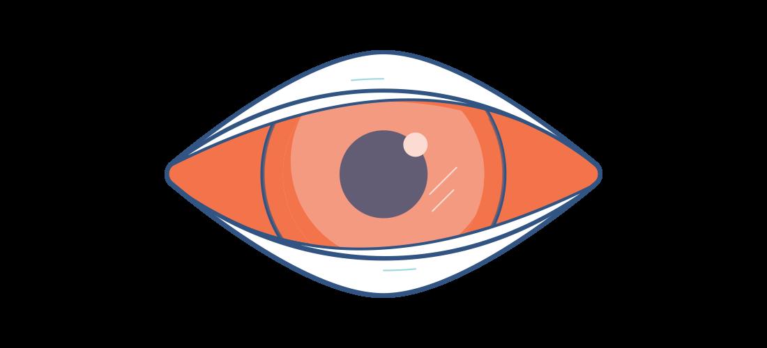 Illustration af et irriteret rødt øje