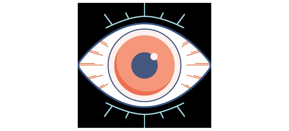 Illustration af et tørt, rødt og smertefuldt øje