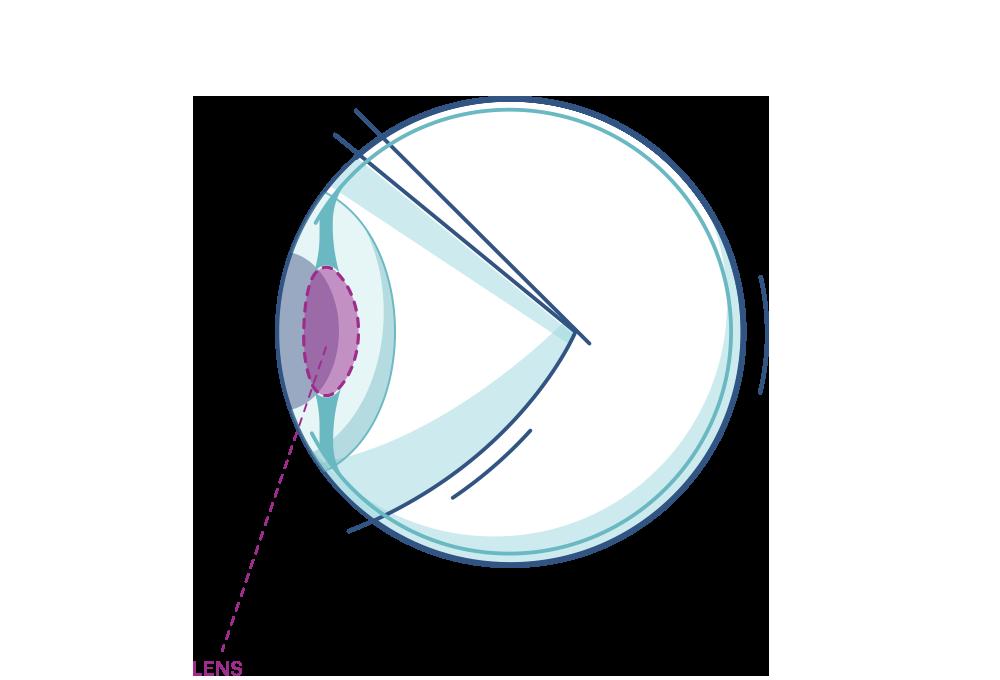 Illustration af et øje der fremhæver linsen