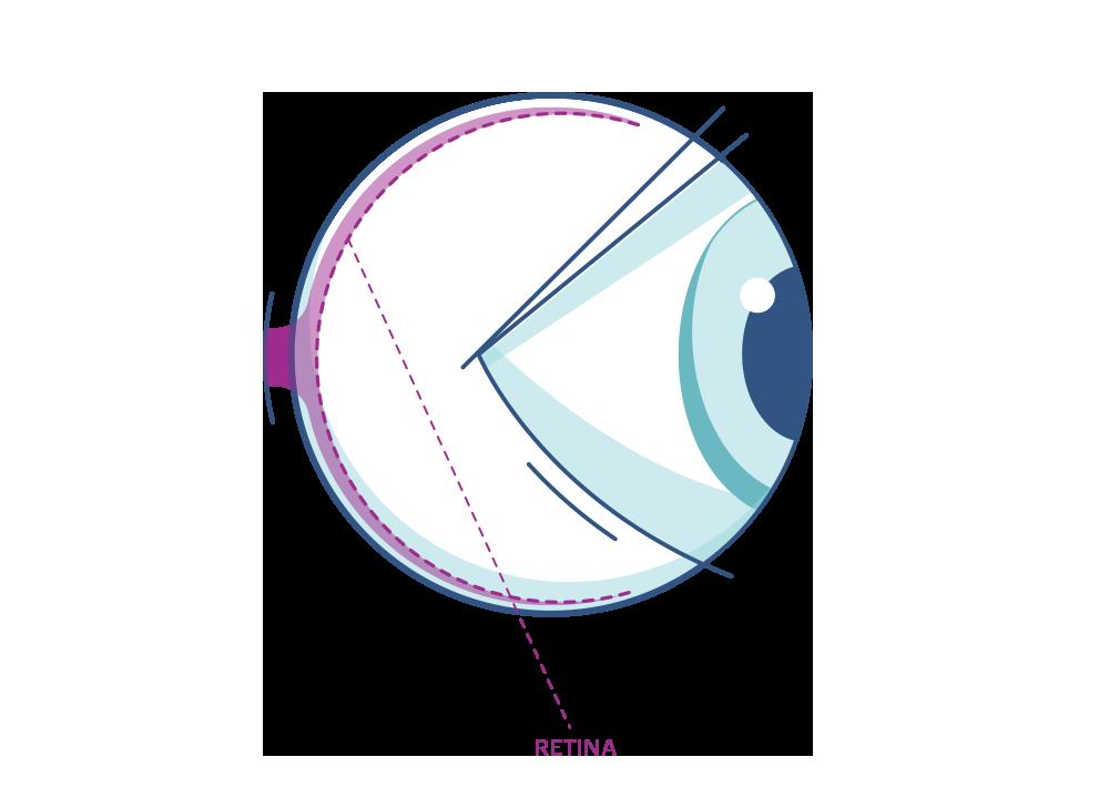 Illustration af et øje der fremhæver nethinden