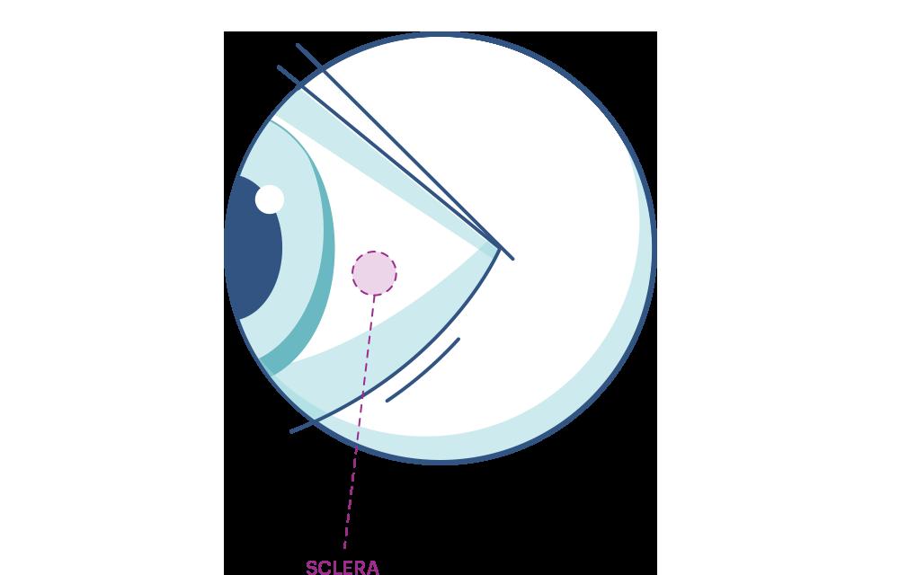 Illustration af et øje der fremhæver senehinden