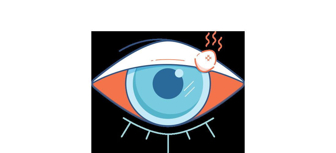 Illustration af et ømt rødt øje med et rødt, smertefuldt bygkorn